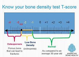 Bmd Z Score Chart Understanding Bone Density Results American Bone Hea