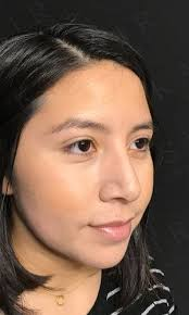 If you require a rhinoplasty to deal with an obstructed airway, you procedure may be covered by your health insurance. Rhinoplasty Nj Best Rhinoplasty Nj By Dr Kassir