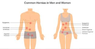 hernia mesh pain causes symptoms and