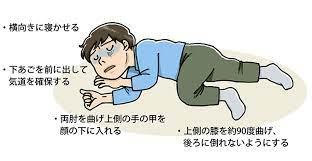 急性 アルコール 筋 症