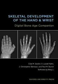 Bone Age Chart Skeletal Development Of The Hand And Wrist Digital Bone Age