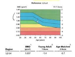 Bmd Z Score Chart Osteopenia Osteoporosis Basic Science Orthobullets