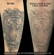 Skin Design Vegas Tattoo Removal Systems Skin Design Tattoo