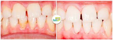 however if you frequently dodge brushing and flossing your teeth these hundreds of bacteria can become thousands ultimately it can lead to plaque and