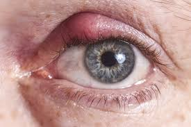 stye is a pimple like red p that forms on the eyelid mostly outside