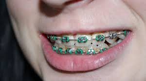 5 ways to relieve pain from braces