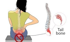 Coccydynia Tailbone Pain Causes Diagnosis Pain Relief And