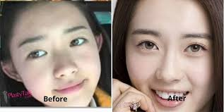 korean actress before and after plastic surgery photo 1