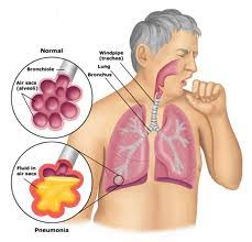 Cara mengobati batuk berdarah