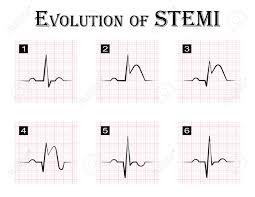 Ecg Of Evolution Step By Step Of Stemi St Elevation Myocardial