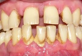 Resultado de imagen de enfermedad periodontal.