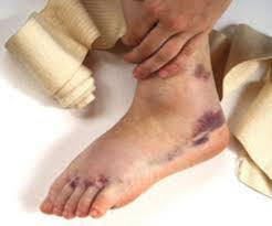 signs and treatment for sprained ankles
