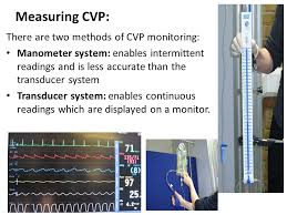 Central Venous Pressure Measurements Cvp Measuring Magdalene Project Org