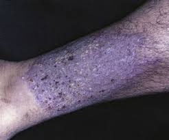MKSAP quiz: Treating an itchy rash on hands and arm | ACP Internist