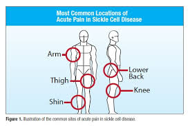Sickle Cell Anemia Pie Chart Pain Management Dilemmas Of Sickle Cell Disease