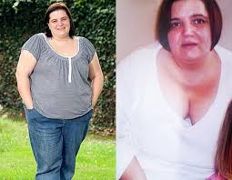 Having a gastric band ruined my life! - Mirror Online