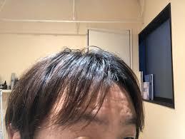 M字部分に隙間ができ割れてしまう前髪男性のお悩みをボリューム
