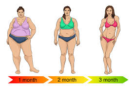 how much does weight loss surgery cost