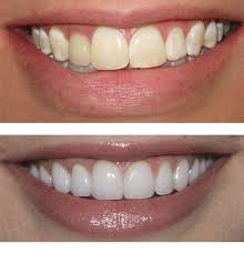 thanking of getting veneers on your teeth learn the difference between porcelain and resin veneers