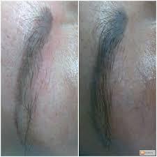 деликатное удаление татуажа татуировок ремувер