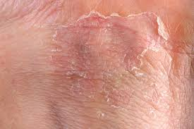 Eczema Symptoms - What are the symptoms of Eczema?