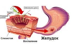 Язвенная болезнь у детей Причины развития хронической язвы