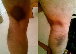 Leg Wikipedia Strain Injury Wikipedia