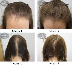 Hairstyles Female Hair Loss Success Story Alert New Female Hair Loss Treatment Entry