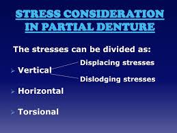 Principles Of Removable Partial Denture Design Ppt Biomechanical Principles Of Removable Partial Denture