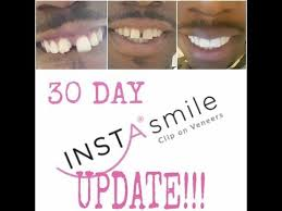 Instasmile Color Chart Instasmile 30 Day Update Q A Youtube 30 Day Dental