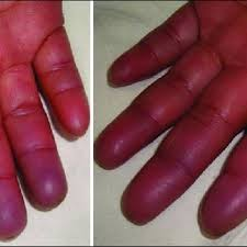 palmar face of the hands with cyanosis