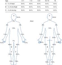 Rule Of 9 S Burn Chart Child Burn Injury Rule Of Nines Springerlink