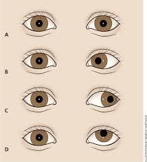 How Do Eyes React To Light Childhood Eye Examination American Family Physician