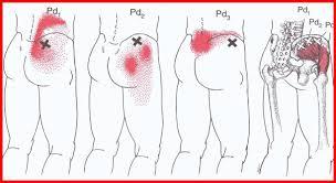 Resultado de imagem para dor lombar