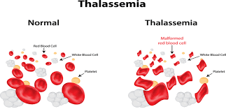 Thalassemia Major Diet Chart My Life With Thalassemia Minor On A Plant Based Diet