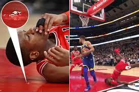 Chicago Bulls star Kris Dunn chips ...