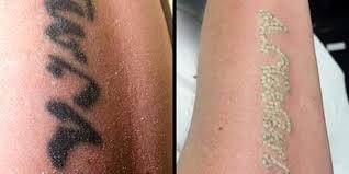 Odstranění Tetování Q Switch Laserem V Profi Studiu Udělejte Si Místo Na Nový Kus