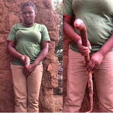 Women growing a penis