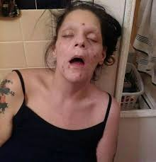 Ex heroin addict releases shocking pic of herself looking near.