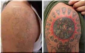 Jak Se Dělá Tetování Na Domácím Videu Bez Jizev Společnosti Car