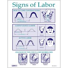 Signs Of Labor Educational Tear Pad Childbirth Graphics
