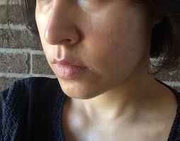 skin redness after salicylic acid l