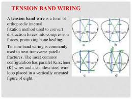 K Wire Conversion Chart Fracture Of Patella