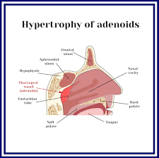 Adenoids What Are They Sinus Nasal Specialists Of Lousiana