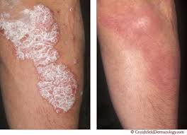 How To Cure Psoriasis Permanently Cure Psoriasis Naturally And Fast
