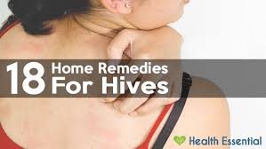 How to Get Rid of Hives Fast and Naturally: 18 Proven Cures