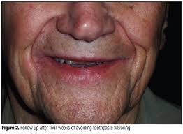 Toothpaste Allergy Diagnosis and Management : JCAD | The Journal of ...