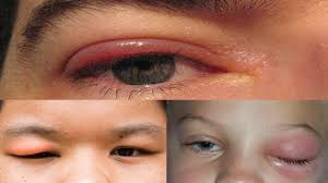 home remes to get rid of swollen eyes fast how to cure puffy eyes