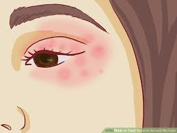 How to Treat Eczema Around the Eyes (with Pictures) - wikiHow
