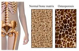 Image result for osteoporosis photos
